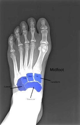 foot-broken